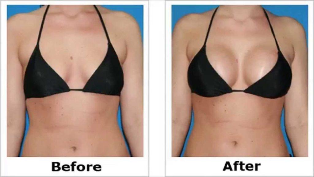 Avant-Après : Résultats avec des implants mammaires